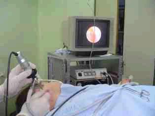 videoendoscopia, Uso de fibroscopia con video